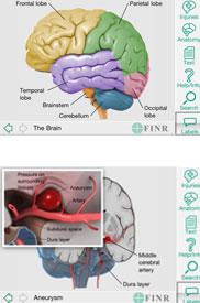 FINR Brain Atlas by Florida Institute for Neurologic Rehabilitation, Inc.